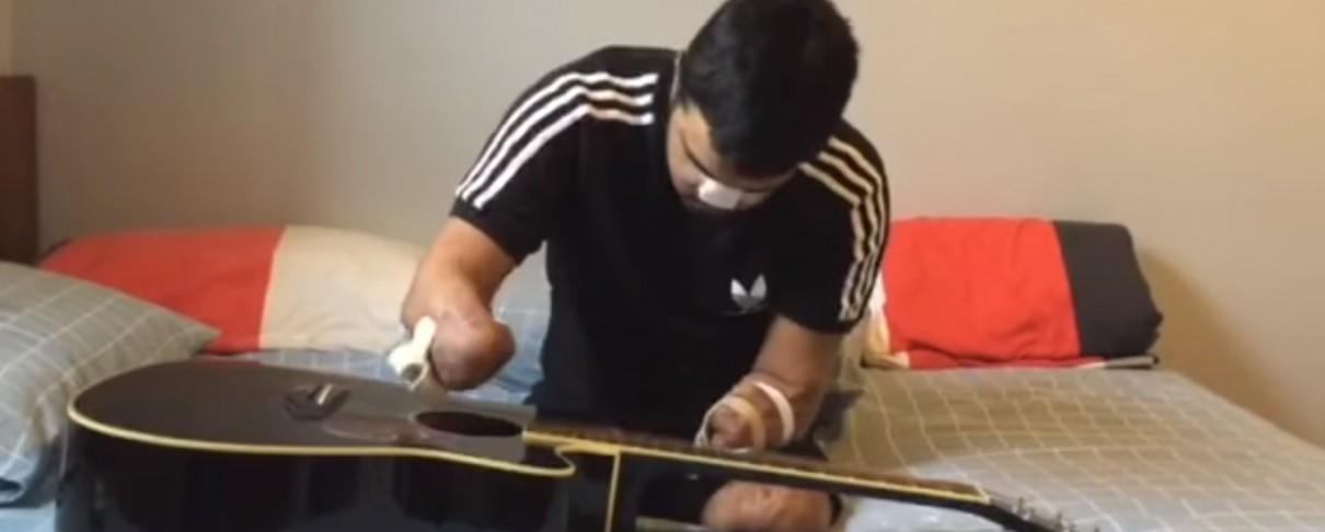 Κιθαρίστας ξαναμαθαίνει κιθάρα αφότου χάνει και τα τέσσερα μέλη του (video)